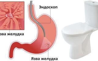 Может ли быть диарея при язве желудка?
