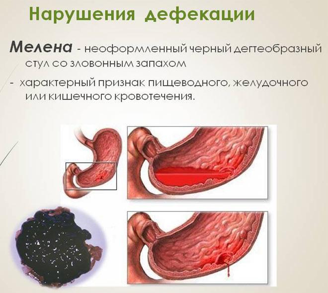 Черника окрашивает кал в черный цвет