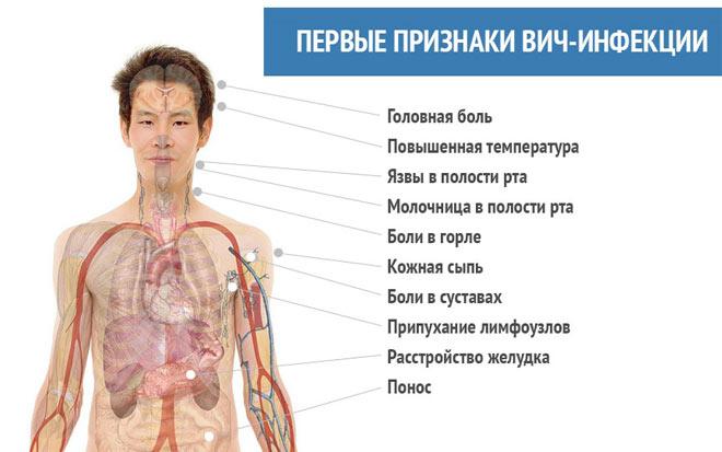 признаки вич инфекции